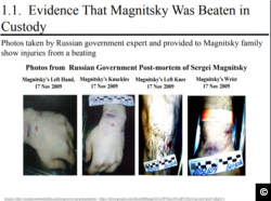 A screen capture from http://russian-untouchables.com with photographic evidence documenting beatings Sergei Magnitsky received in prison.